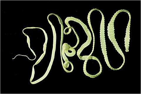 https://www.micrographia.com/specbiol/helmint/platyhel/cest0100/hymenol0.jpg